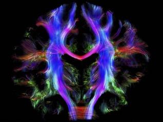 Vue du cerveau